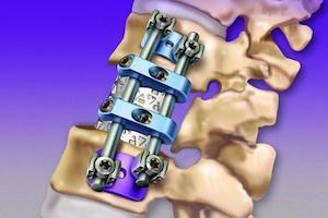 Металлическая конструкция в кости