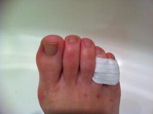 Повязка на сломанный палец