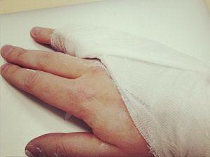 Перелом со смещением мизинца на руке