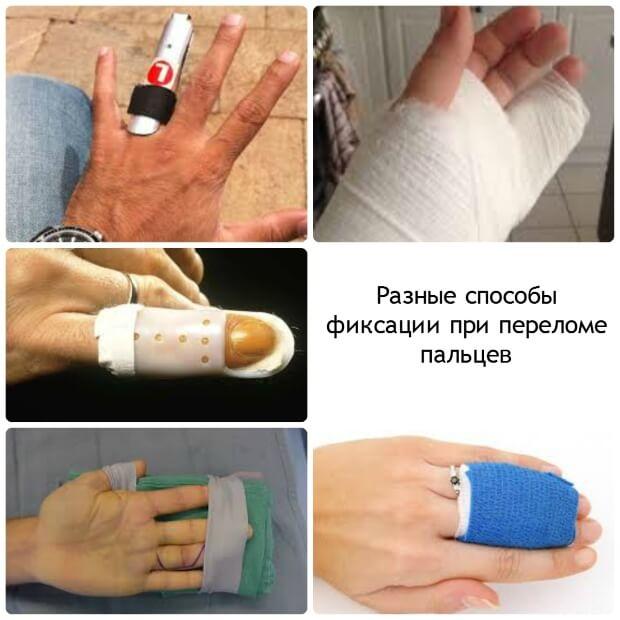 Разные способы фиксации при переломе пальцев