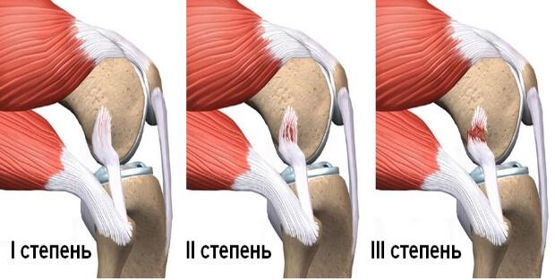 Степени растяжения мышц