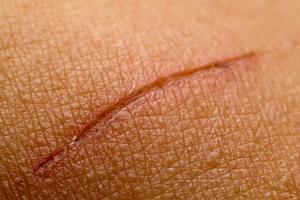 Рана от бритвы