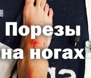 Порезы на ногах