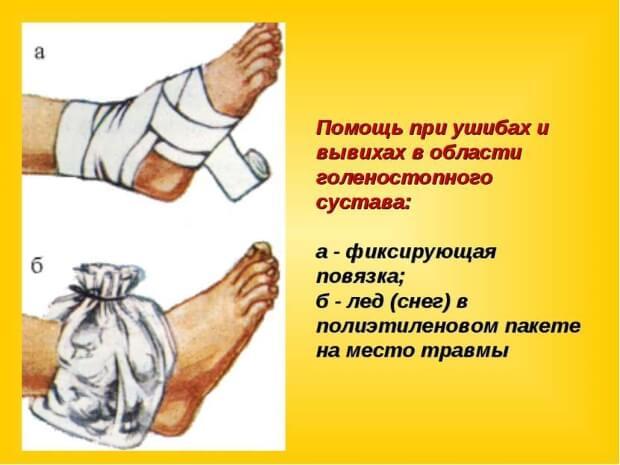 Помощь при ушибе ноги