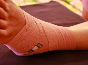 Сильный вывих ноги