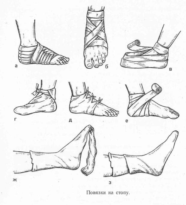 Правила наложения тугой повязки при растяжении 24