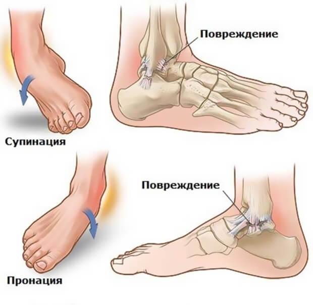 признаки вывиха ноги в щиколотке