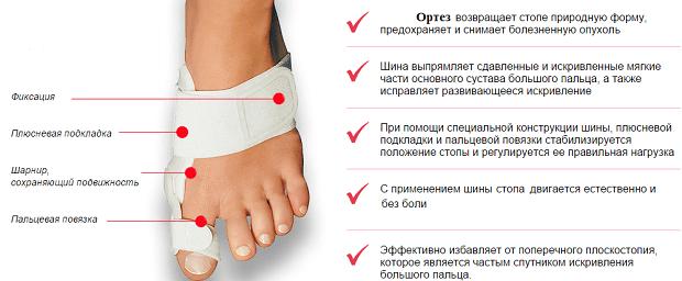 Ортез на стопу ноги