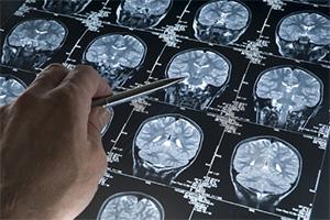 Рентген и диагностика