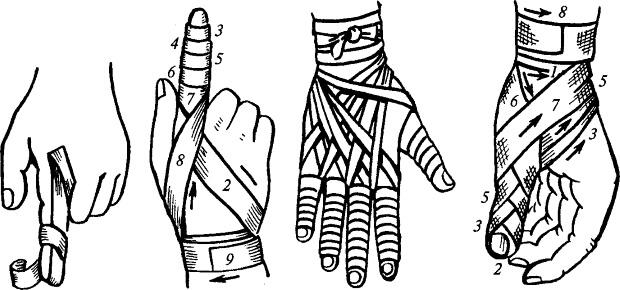 Способы наложения стерильной повязки на палец
