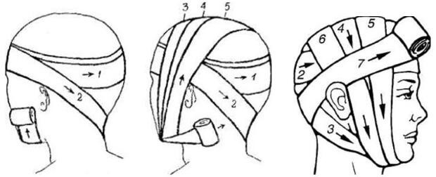 Схема наложения повязки