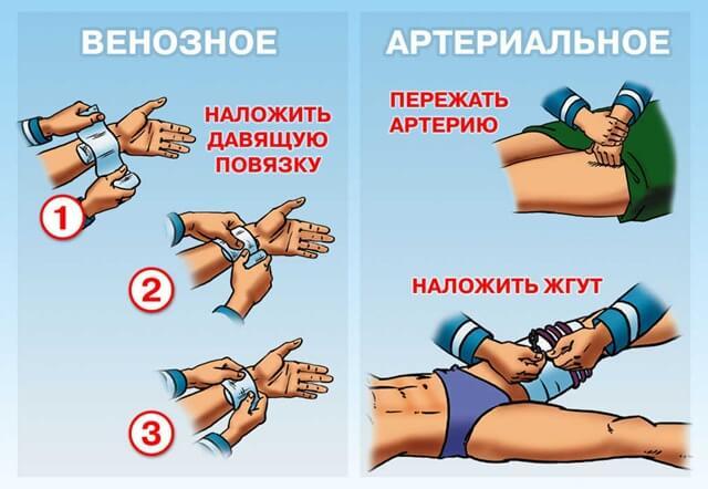 Первая помощь при венозном и артериальном кровотечении
