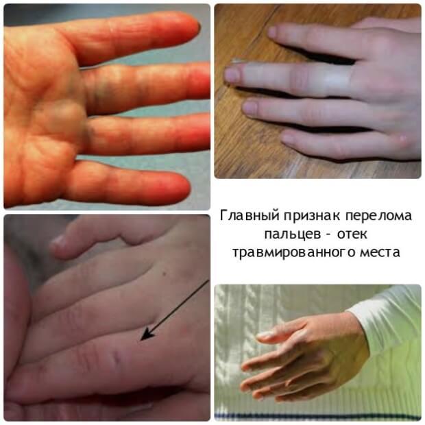 Отек пальца