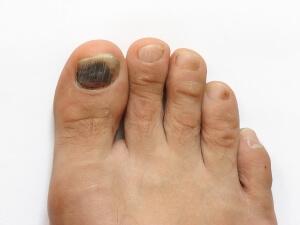 Потемнение ногтя при ушибе