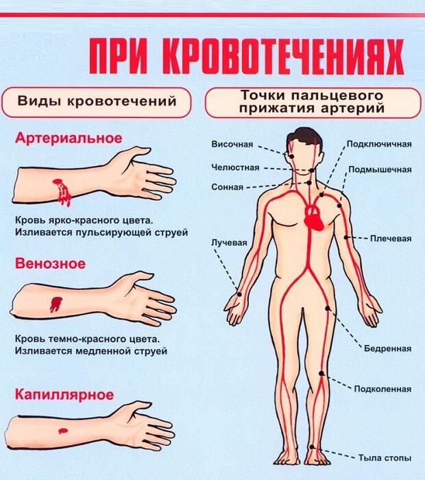 Помощь при кровотечениях