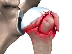 Перелом плеча без смещения