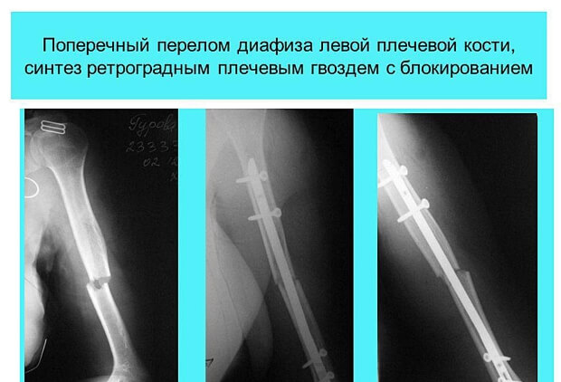 Рентген перелома плеча