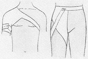 Изображение - Повязка при растяжении плечевого сустава povjazka-plechevoj-sustav-4