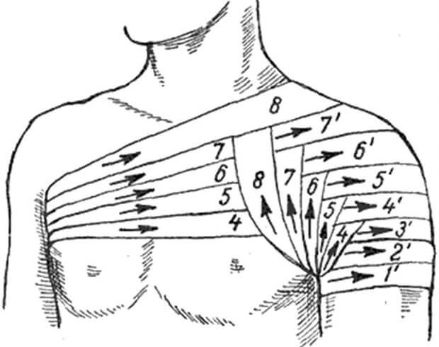 повязка при вывихе плеча