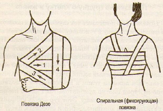 Фиксирующая повязка на плечевой сустав