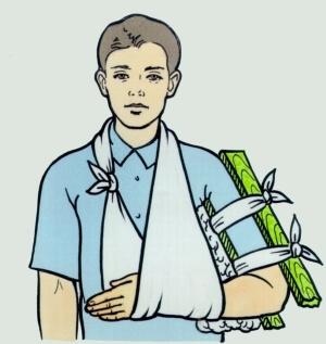 Повязка на руку при переломе