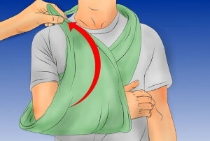 Наложение фиксирующей повязки при переломе
