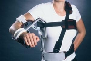 Бандаж при переломе предплечья