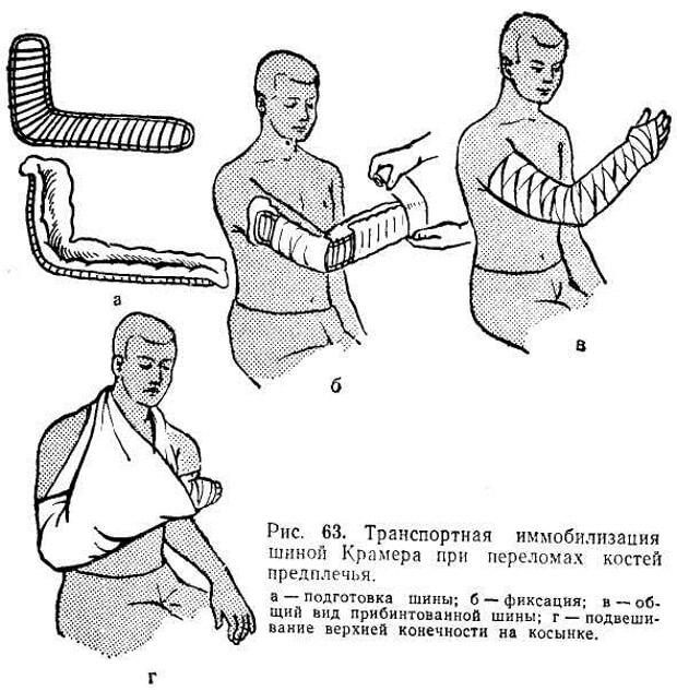 Правила наложения фиксирующей повязки при переломе