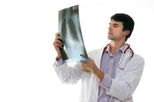 Рентген сломанных ребер
