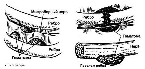 Перелом и ушиб ребер