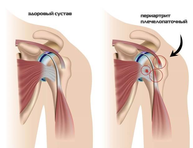 Плечелопаточный периатрит