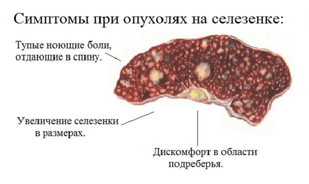 Болит селезёнка симптомы лечение в домашних условиях 63
