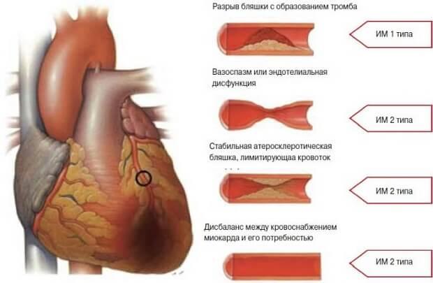 Разрыв сердца