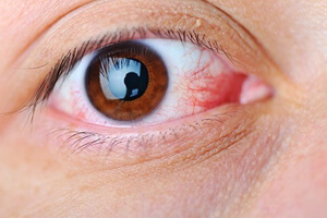 Глаз с кровоподтеком