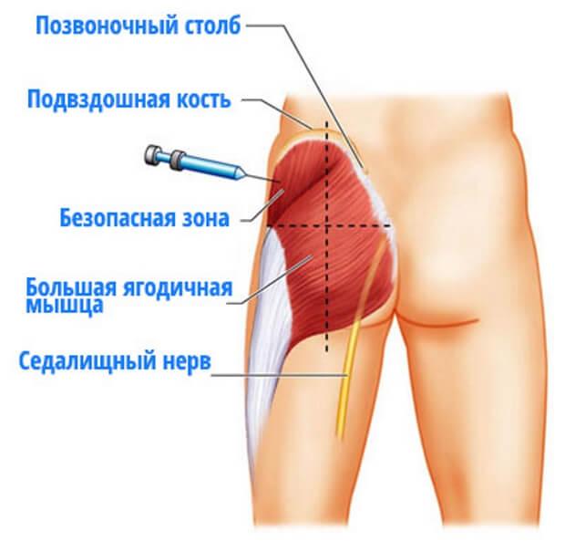 Техника проведения инъекций