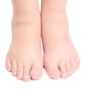 Причины опухоли ноги