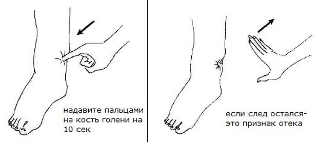 ноги проверять суставы