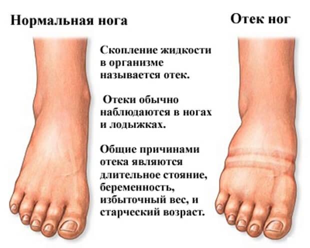 Нога с отеком