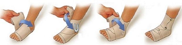Перевязка ноги