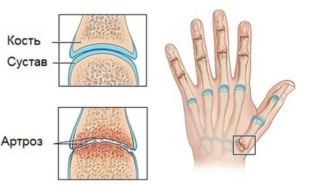 Артроз пальцев