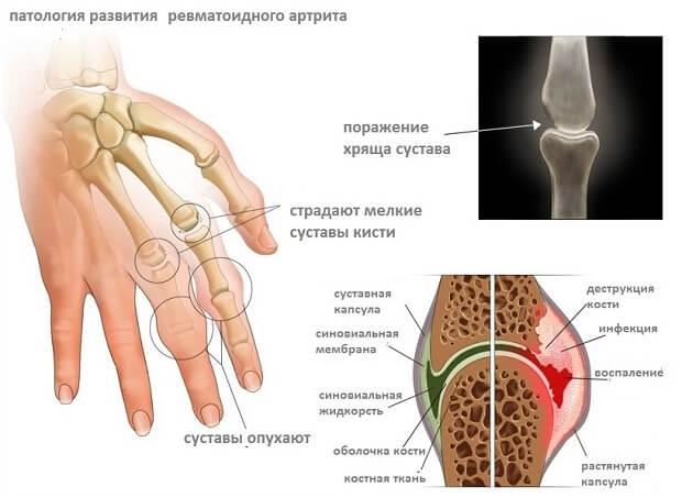Ревматоидный артрит пальцев