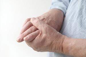 Опухание рук