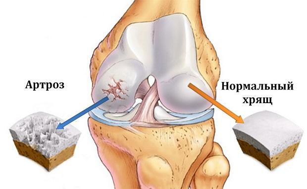 Ноющие боли в суставах рук и ног причины