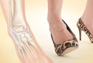 Ношение обуви на каблуках