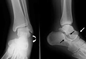 Рентген травмы голеностопа
