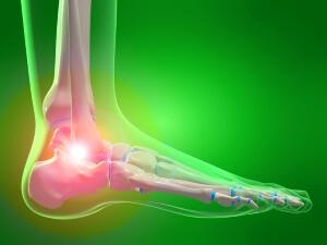 Локализация боли при растяжении связок