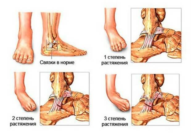 Степени растяжения связок на ноге