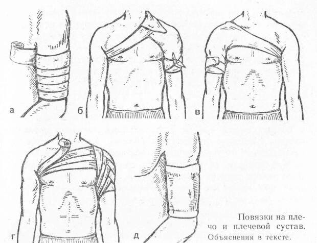 Наложение фиксирующей повязки на плечо