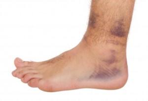 Синяки на ногах без причины