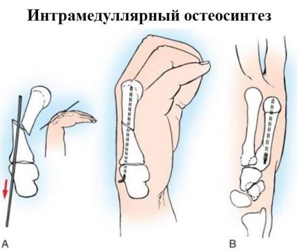 Интрамедуллярный остеосинтез бедренной кости
